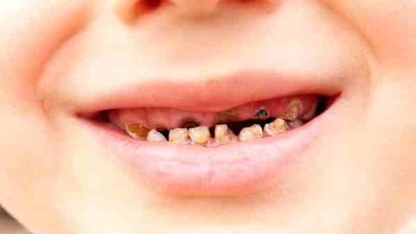 Лечение контактного кариеса молочных зубов у детей