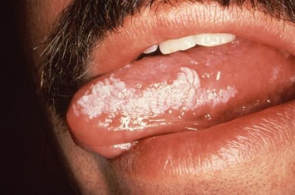 Лейкоплакия полости рта симптомы