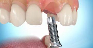 Одномоментная имплантация зубов – преимущества и недостатки