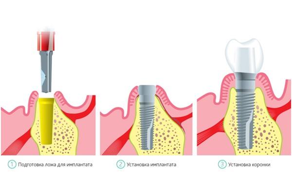 Одномоментная имплантация зубов что это такое