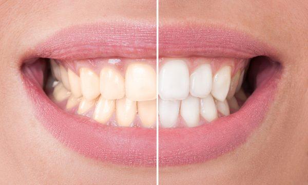 Отбеливание зубов системой opalescence boost купить