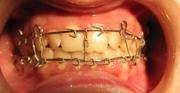 Ортопедическое лечение перелома нижней челюсти