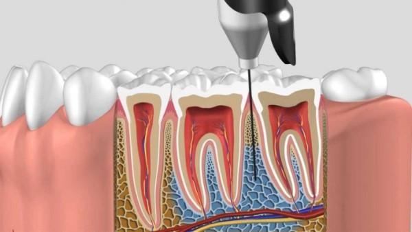 Виды местных анестезий в стоматологии