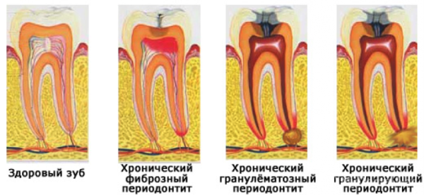 Хронический периодонтит симптомы фото