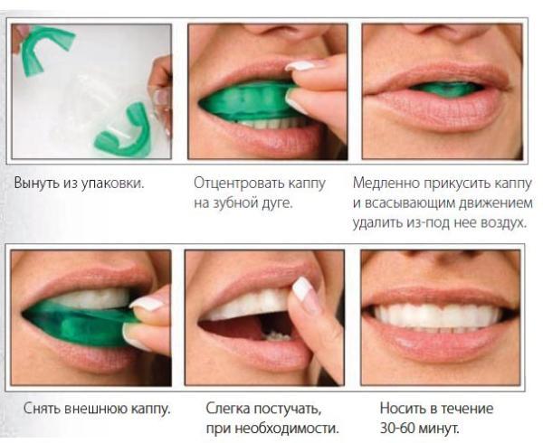 Отбеливание зубов на основе активного кислорода opalescence видео