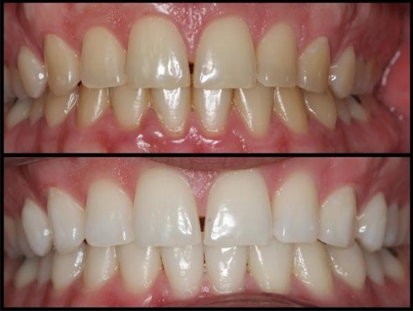 Отбеливание зубов содой опасно