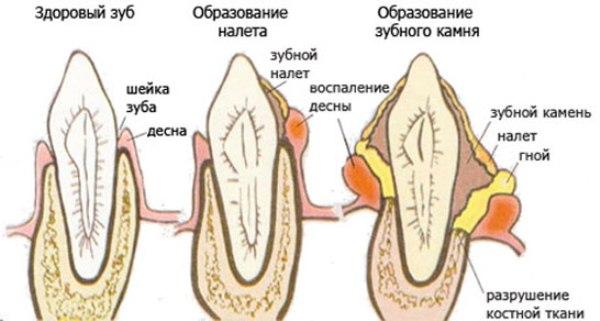 Причины появления зубного камня
