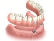 Виды протезирования при полном отсутствии зубов