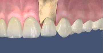 Показания к резекции верхушки корня зуба