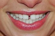 Устранение щели между передними зубами