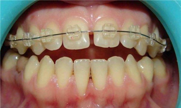 Щель между передними зубами у ребенка