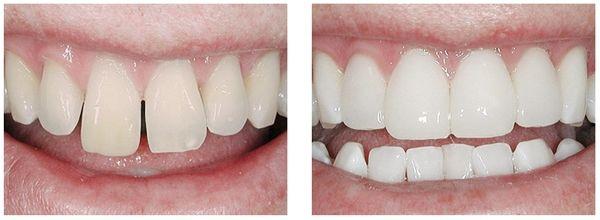 Фото до и после лечения диастемы у ребенка