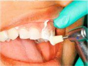 Принцип шлифовки зубов