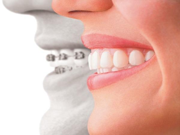 Зубные капы для выравнивания зубов детей