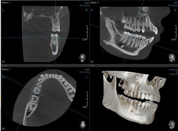 Дентальная компьютерная томография зубов это
