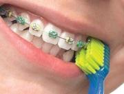 Средства по уходу за зубами с брекетами