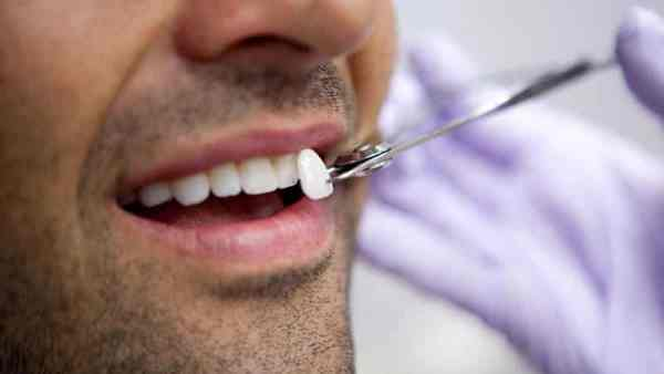 Покрытие зубов винирами цена