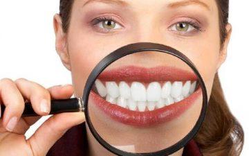 Вредно ли отбеливание зубов, и какие методы опасны
