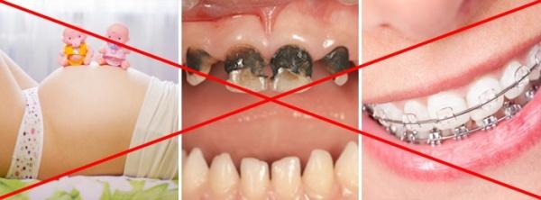Лазерное отбеливание зубов вредно ли