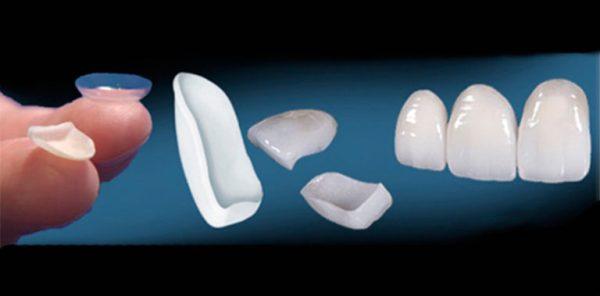 Керамические виниры на зубы цена отзывы