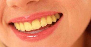Почему появляется желтый налет на зубах