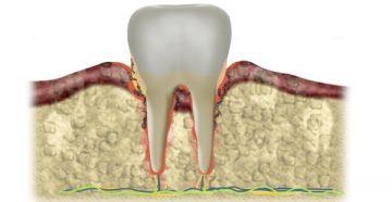 Причины образования зубного камня и возможные осложнения
