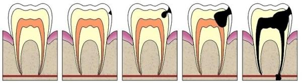 Как выглядит глубокий кариес передних зубов фото