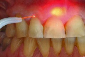 Лечение кисты корня зуба лазером цена