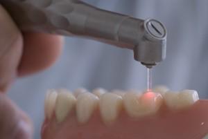 Киста зуба лечение лазером цена
