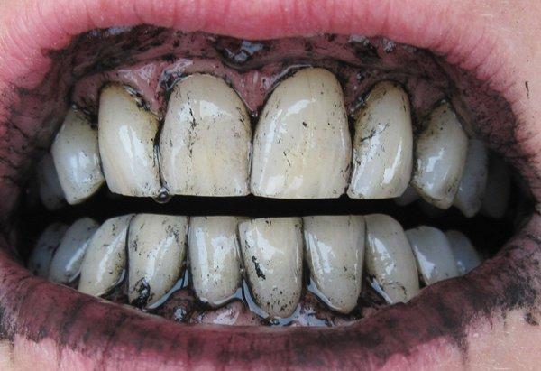 Отбеливание зубов активированным углем вредно