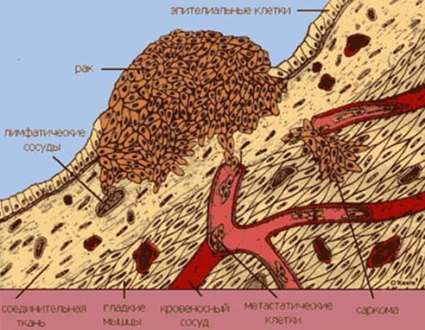 Рак дна полости рта лечение прогноз