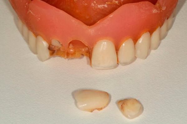 Клей для ремонта зубных протезов