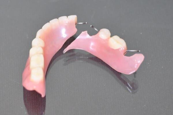 Изготовление и ремонт съемных зубных протез цена