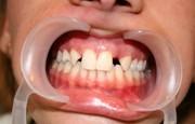 Как убрать тремы между зубами