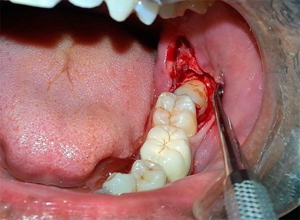 Местные осложнения после удаления зуба