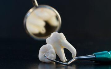 Местные осложнения после удаления молочных зубов
