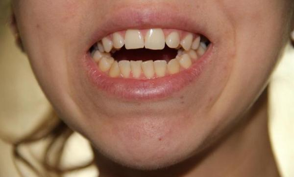 Открытый прикус зубов фото до и после лечения