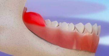 Хирургическое лечение перикоронарита зуба мудрости