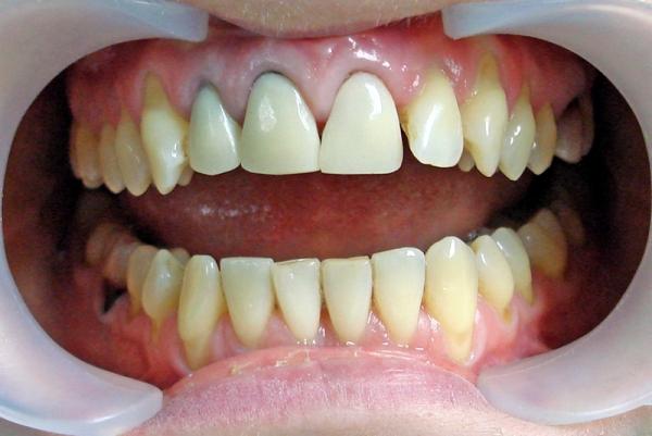 Стоматология ремонт зубных протезов своими руками