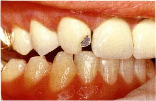 Стоимость ремонта нейлоновых зубных протезов