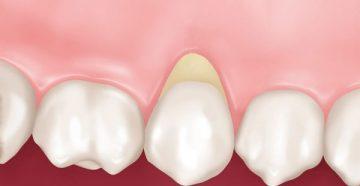 Возможные осложнения и профилактика клиновидного дефекта зуба
