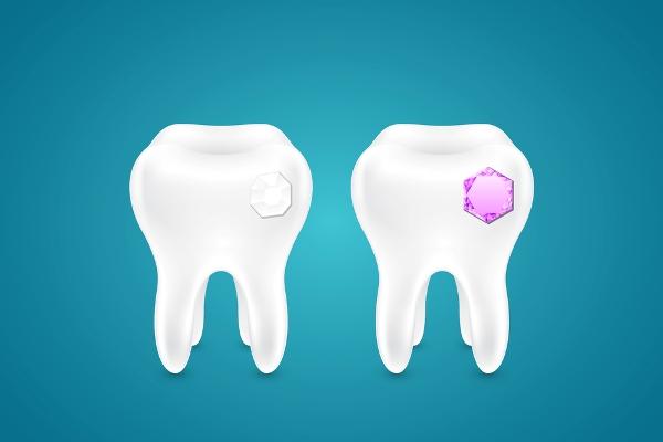 Стразы на зубы цена