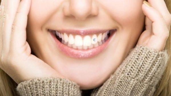 Стразы на зубы отзывы