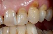 Фото клиновидного дефекта зуба