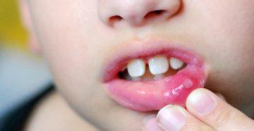 Эффективные средства для лечения афтозного стоматита