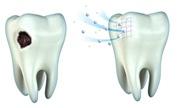 Проведение реминерализации зубов