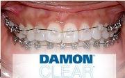 Брекет системы Damon Clear