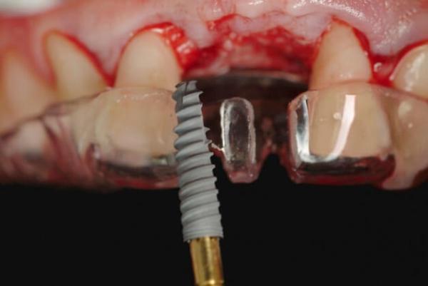 Методы имплантации