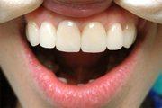 Как выглядят металлокерамические коронки на зубы