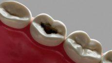 Лечение среднего кариеса в стоматологии
